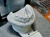 Zahnimplantate aus Titan - Eine Geschichte mit Biss